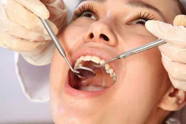 que-es-endodoncia