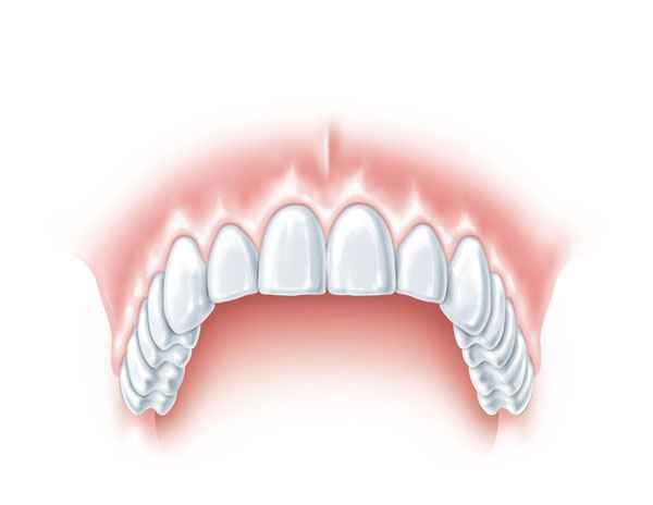 endodoncia.mecanizada