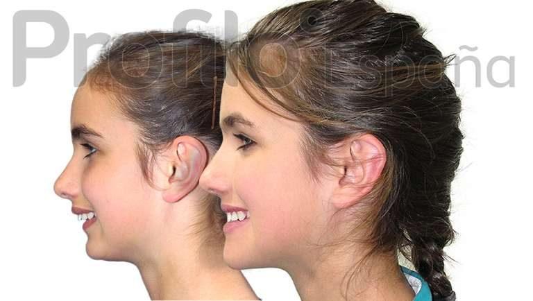 operacion-mandibula-en-madrid