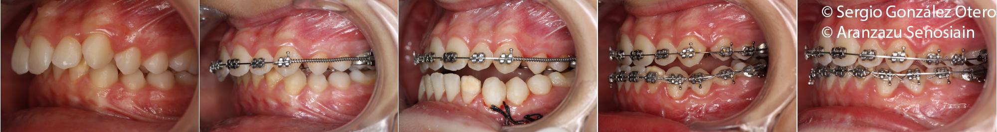 Corrección de una mandíbula pequeña (clase II) con cirugía de avance mandibular IMDO y ortodoncia