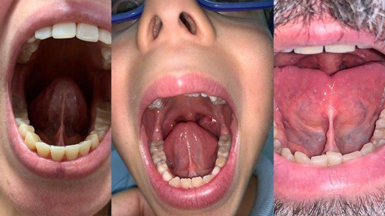 frenectomia-lingual