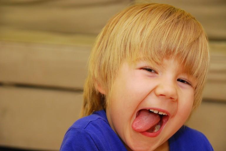 tratamiento-frenillo-lingual-labial