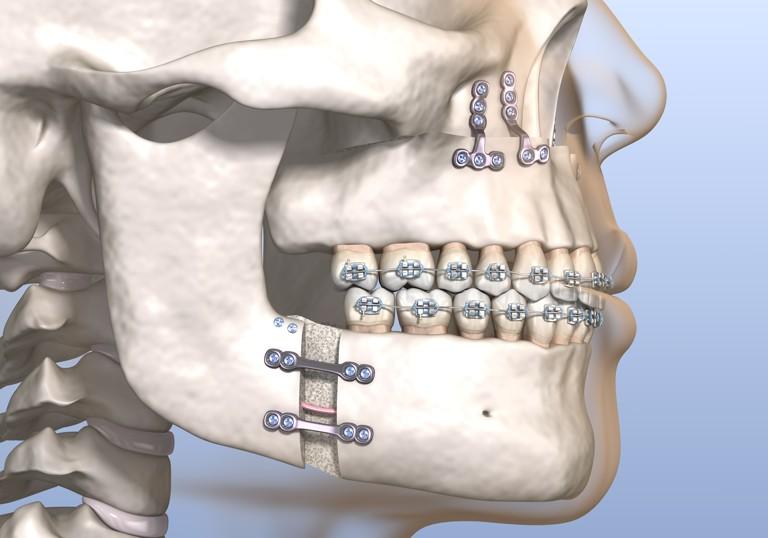 preparacion-reparacion-cirugia-ortognatica