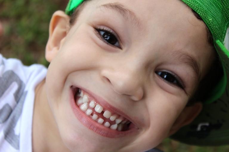 terapia-miofuncional-ortodoncia