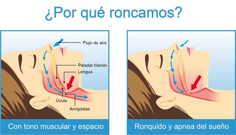 tratamiento-del-ronquido