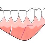 Colocación placa mandíbula-1