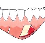 Colocación placa mandíbula-2