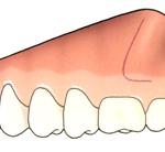 Colocación placa maxilar-1