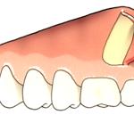 Colocación placa maxilar-2