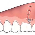 Colocación placa maxilar-3
